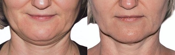Strawberry Lift Before After at City Retreat Beauty Salon in Newcastle 2