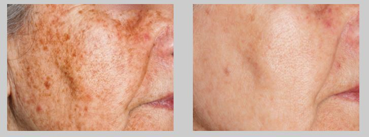 ipl SKIN PIGMENTATION TREATMENTS AT CITY RETREAT BEAUTY SALONS IN NEWCASTLE JESMOND AND GOSFORTH